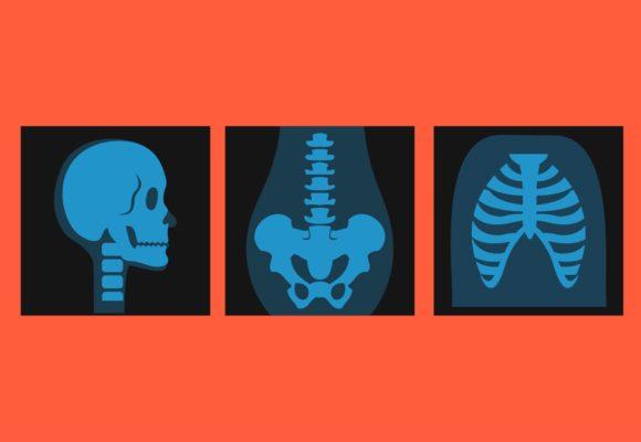 Hastalık Sağlık Durumu Konusunda Bilgi Alma Hakkı